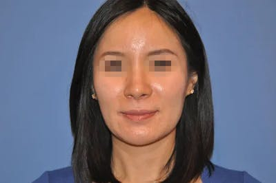 Rhinoplasty Gallery - Patient 13574721 - Image 2