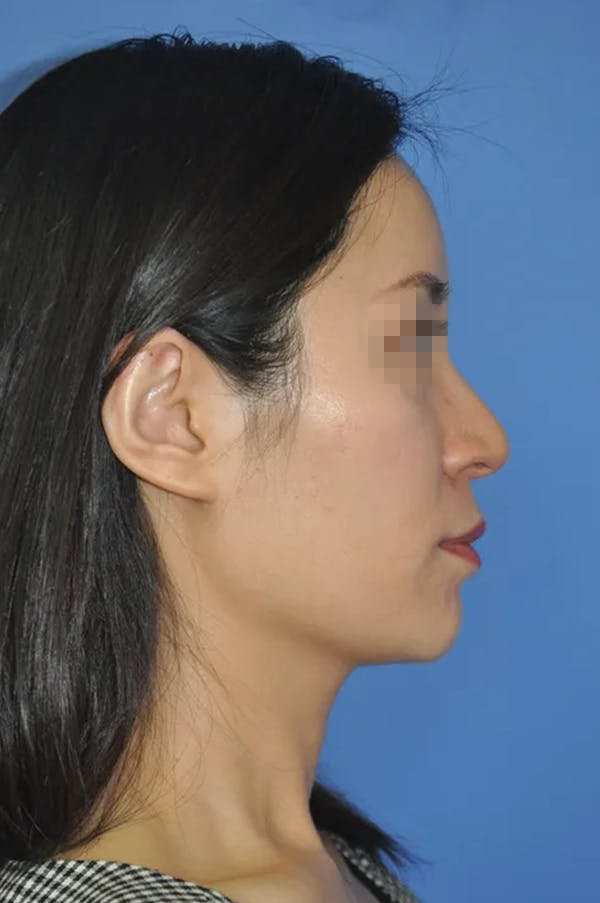 Rhinoplasty Gallery - Patient 13574721 - Image 3