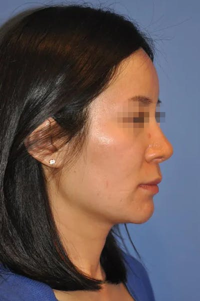 Rhinoplasty Gallery - Patient 13574721 - Image 4