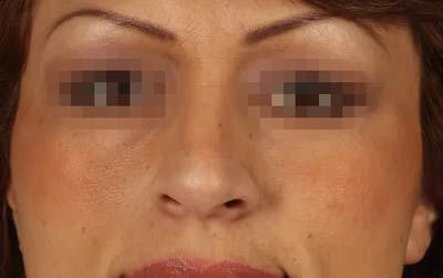 Rhinoplasty Gallery - Patient 13574723 - Image 1