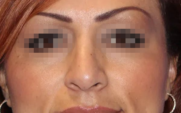 Rhinoplasty Gallery - Patient 13574723 - Image 2