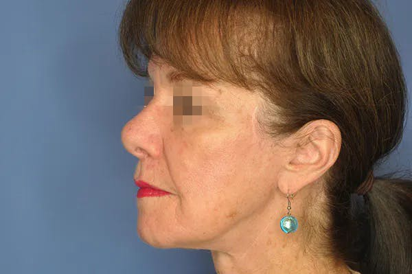 Rhinoplasty Gallery - Patient 13574724 - Image 1