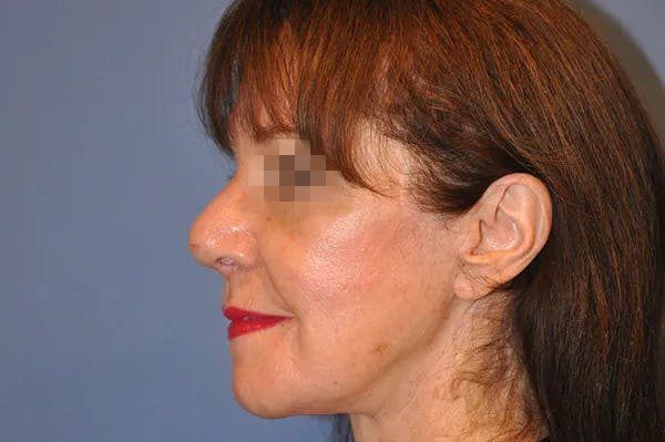 Rhinoplasty Gallery - Patient 13574724 - Image 2