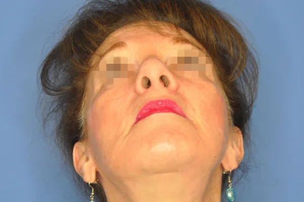 Rhinoplasty Gallery - Patient 13574724 - Image 3