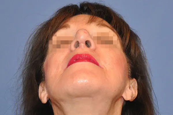 Rhinoplasty Gallery - Patient 13574724 - Image 4