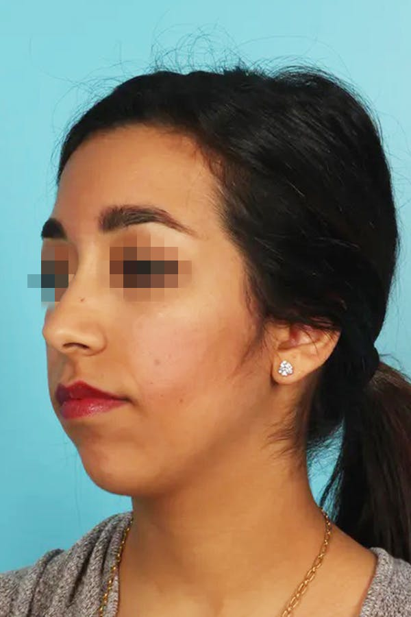 Chin Implant Gallery - Patient 13574731 - Image 1