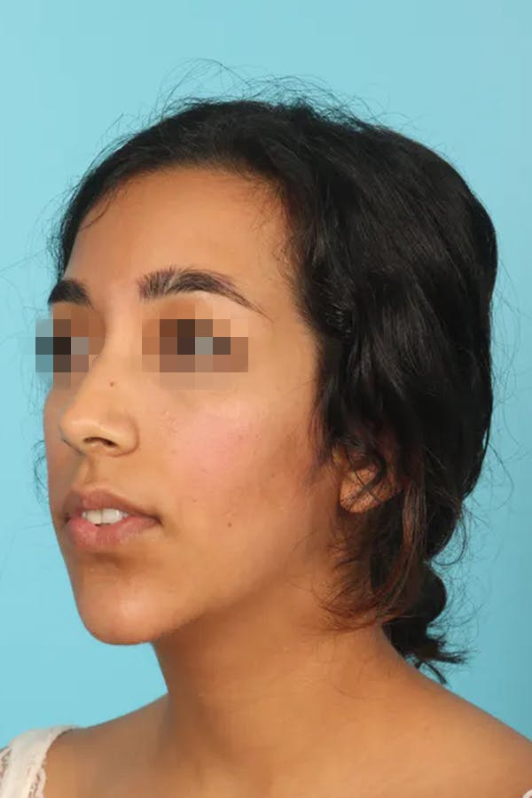 Chin Implant Gallery - Patient 13574731 - Image 2