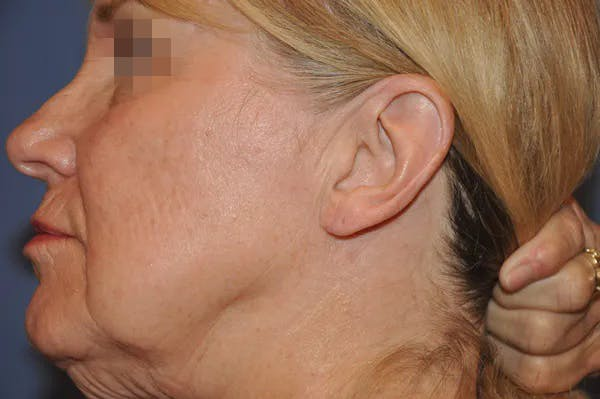 Earlobes Gallery - Patient 13574735 - Image 2