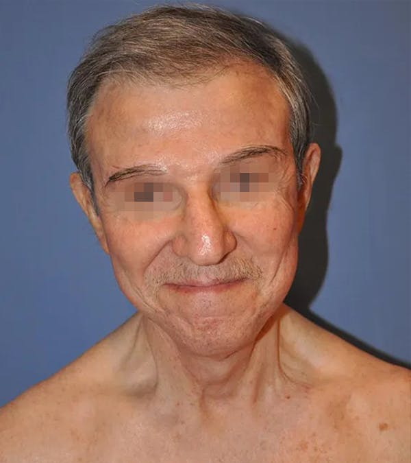 Facelift Gallery - Patient 13574737 - Image 2