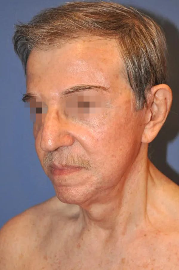Facelift Gallery - Patient 13574737 - Image 4