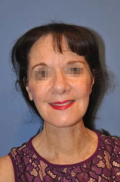 Facelift Gallery - Patient 13574738 - Image 2