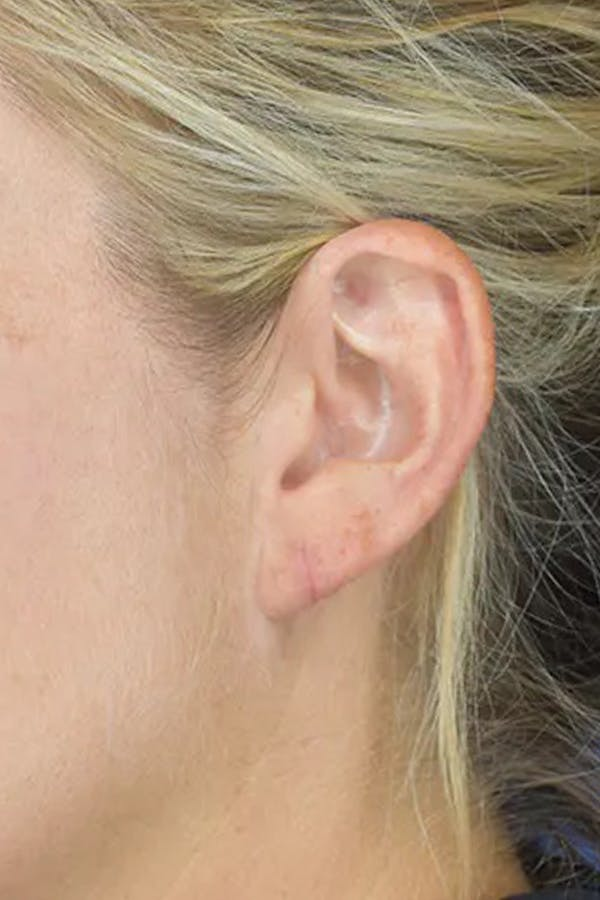 Earlobes Gallery - Patient 21023809 - Image 2