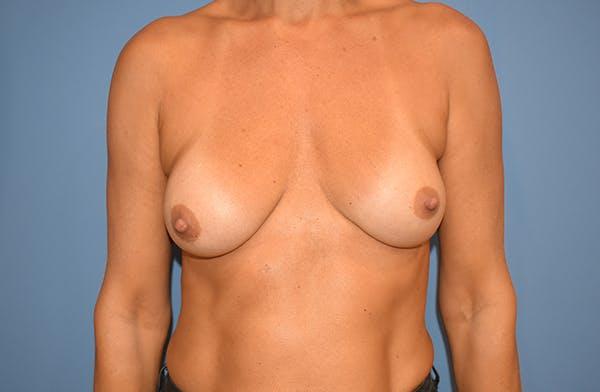Implant Exchange Gallery - Patient 22975743 - Image 1