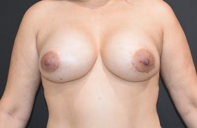 Implant Exchange Gallery - Patient 22975744 - Image 2