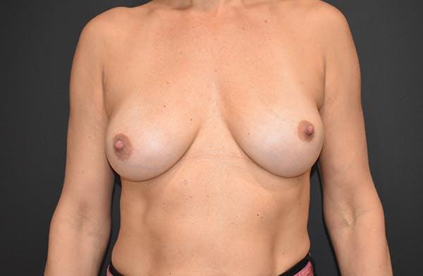 Implant Exchange Gallery - Patient 22975743 - Image 2