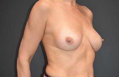 Implant Exchange Gallery - Patient 22975743 - Image 4