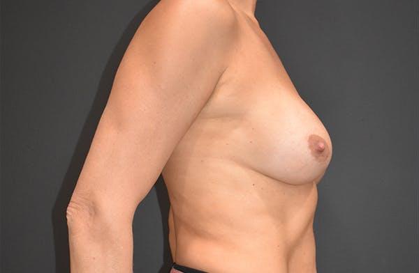 Implant Exchange Gallery - Patient 22975743 - Image 6