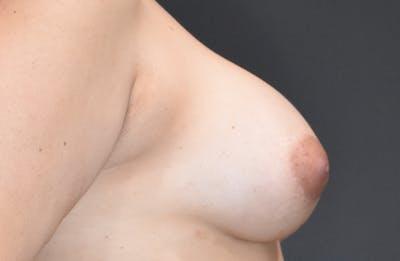 Implant Exchange Gallery - Patient 22975744 - Image 6