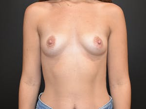 Before and After Breast Implants in Newport Beach