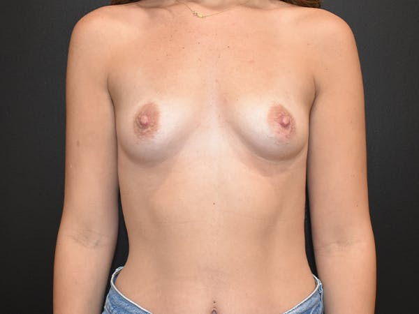 Breast Augmentation Gallery - Patient 22978203 - Image 1