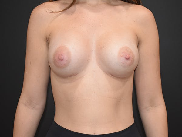 Breast Augmentation Gallery - Patient 22978203 - Image 2