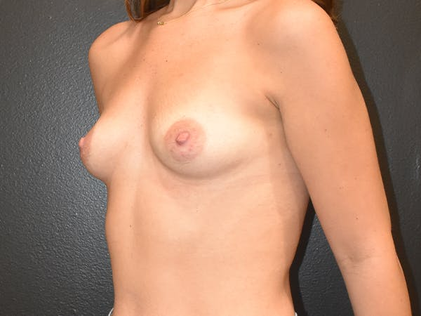 Breast Augmentation Gallery - Patient 22978203 - Image 3