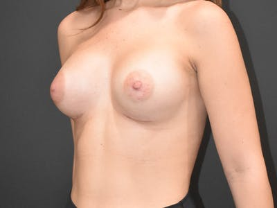 Breast Augmentation Gallery - Patient 22978203 - Image 4