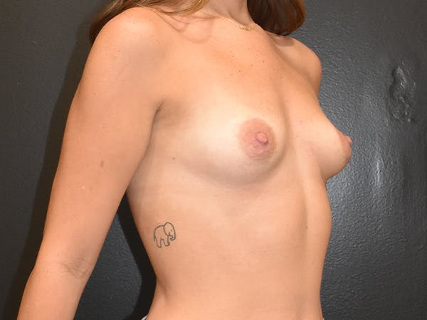 Breast Augmentation Gallery - Patient 22978203 - Image 5