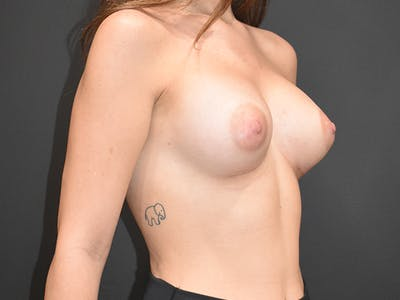 Breast Augmentation Gallery - Patient 22978203 - Image 6