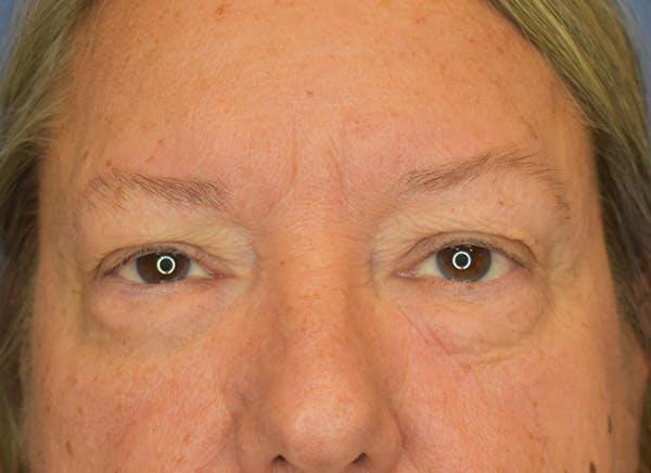 Blepharoplasty (Eyelid Surgery) Gallery - Patient 22978210 - Image 1