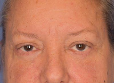 Blepharoplasty (Eyelid Surgery) Gallery - Patient 22978210 - Image 2