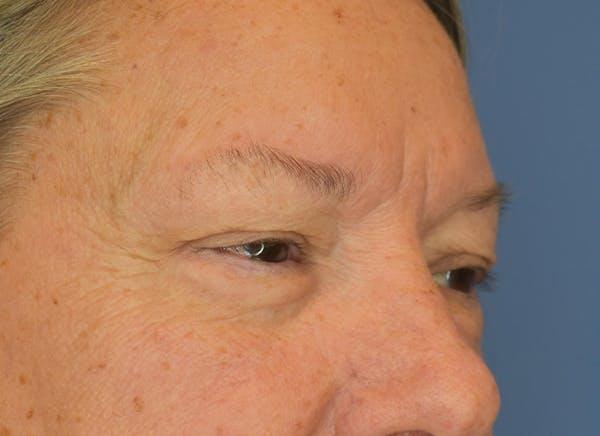 Blepharoplasty (Eyelid Surgery) Gallery - Patient 22978210 - Image 3