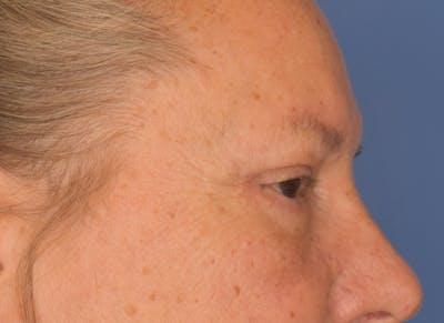 Blepharoplasty (Eyelid Surgery) Gallery - Patient 22978210 - Image 4