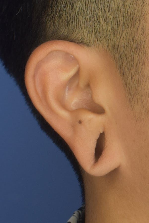 Earlobes Gallery - Patient 22978215 - Image 1