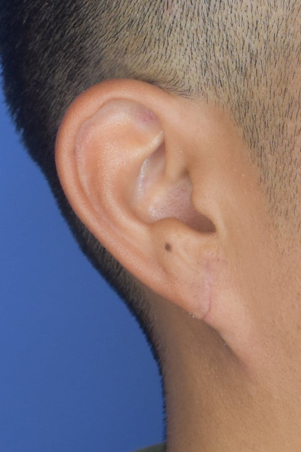 Earlobes Gallery - Patient 22978215 - Image 2