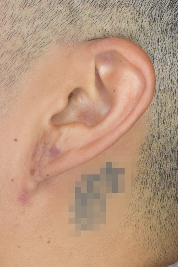 Earlobes Gallery - Patient 22978215 - Image 4