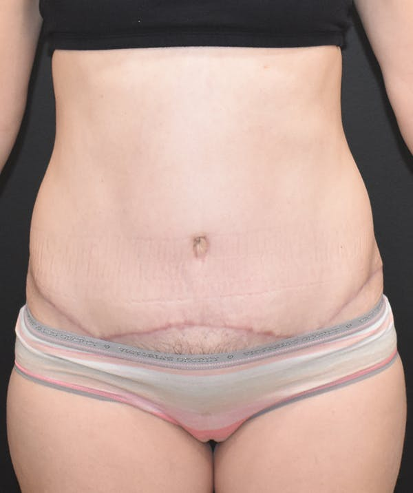 Tummy Tuck (Abdominoplasty) Gallery - Patient 22978227 - Image 2