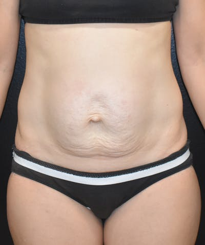 Tummy Tuck (Abdominoplasty) Gallery - Patient 22978227 - Image 1