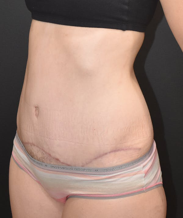 Tummy Tuck (Abdominoplasty) Gallery - Patient 22978227 - Image 4