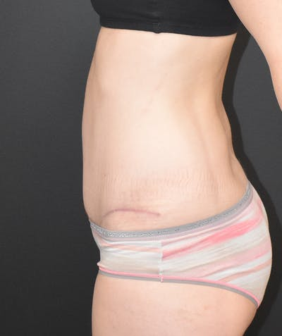 Tummy Tuck (Abdominoplasty) Gallery - Patient 22978227 - Image 6