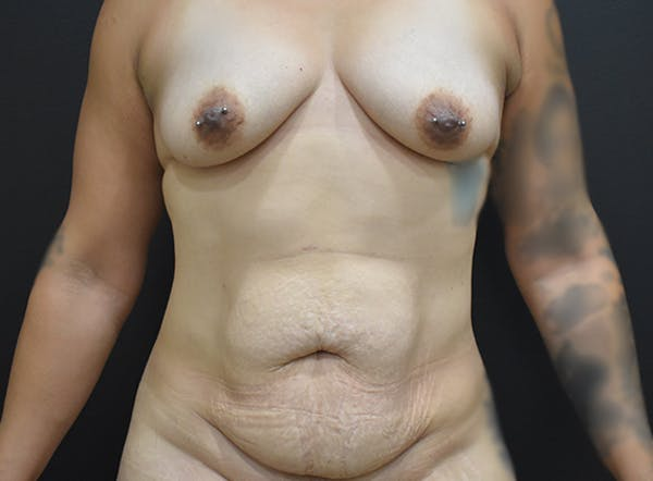 Mommy Makeover Gallery - Patient 39774137 - Image 1