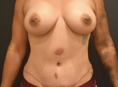 Mommy Makeover Gallery - Patient 39774137 - Image 2