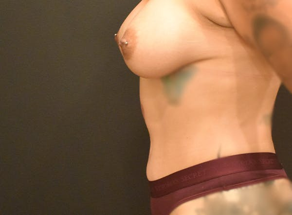 Mommy Makeover Gallery - Patient 39774137 - Image 4