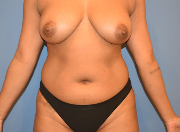 Liposuction Gallery - Patient 39774183 - Image 1