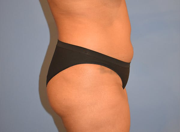 Liposuction Gallery - Patient 39774183 - Image 3