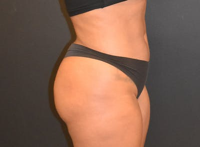 Liposuction Gallery - Patient 39774183 - Image 4