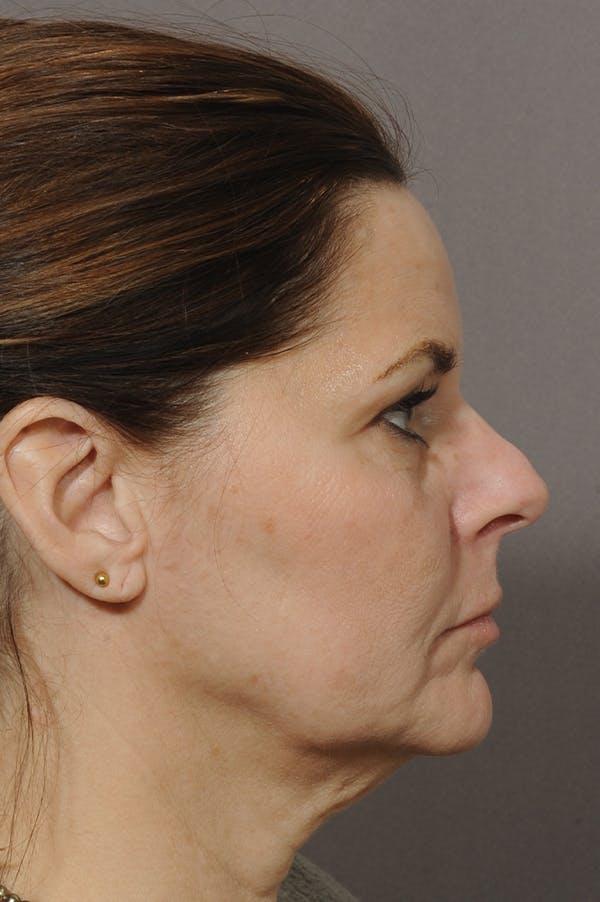 Facelift Gallery - Patient 18726358 - Image 1