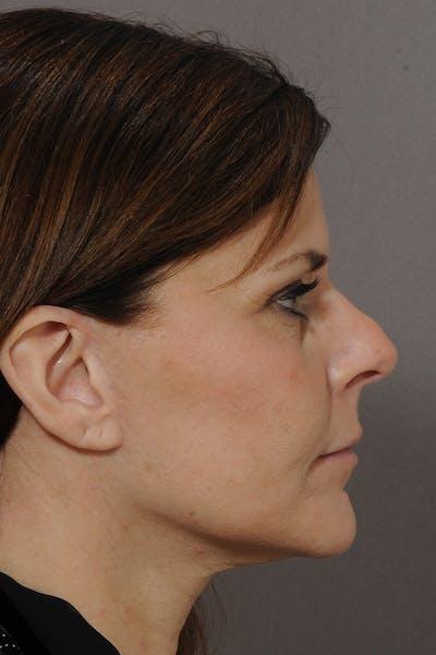 Facelift Gallery - Patient 18726358 - Image 2