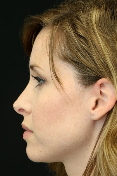 Revision Rhinoplasty Gallery - Patient 18726371 - Image 1