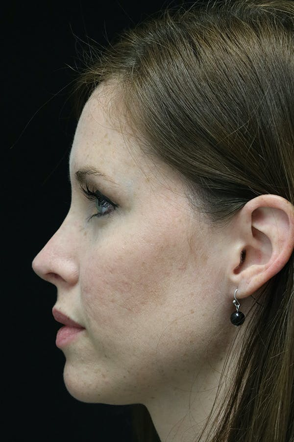 Revision Rhinoplasty Gallery - Patient 18726371 - Image 2